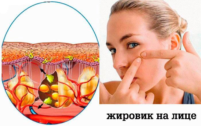 Жировики на лице